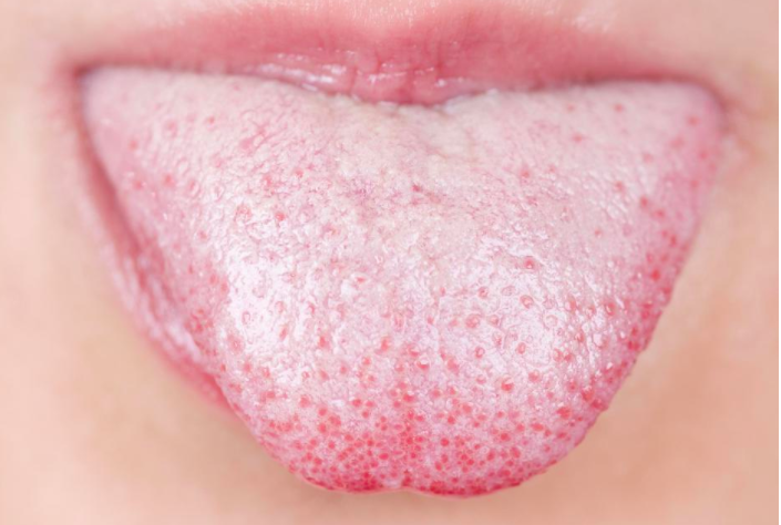 This Is What A White Tongue Says About Your Health Very